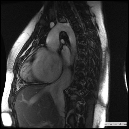 MRI Sagittal view of the heart. Image courtesy St Paul's Hospital, Vancouver, Canada